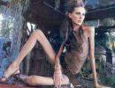 Anorexia que impresiona